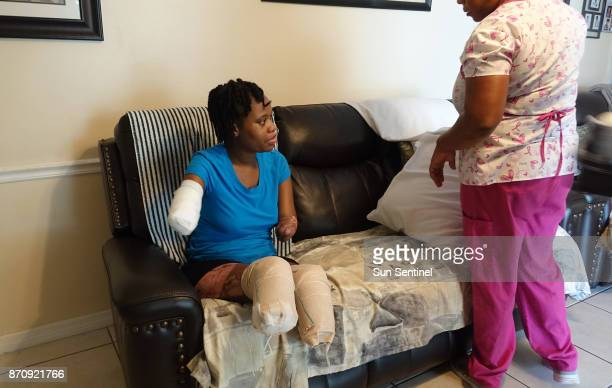 Kayleigh FergusonWalker who lost her limbs because of a sepsis infection get help from her home care assistant Simone Vincent on Tuesday Aug 22 2017...