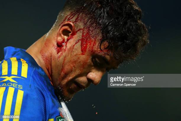 Kaysa Pritchard of the Eels leaves the field for the blood bin during the round 14 NRL match between the Parramatta Eels and the North Queensland...