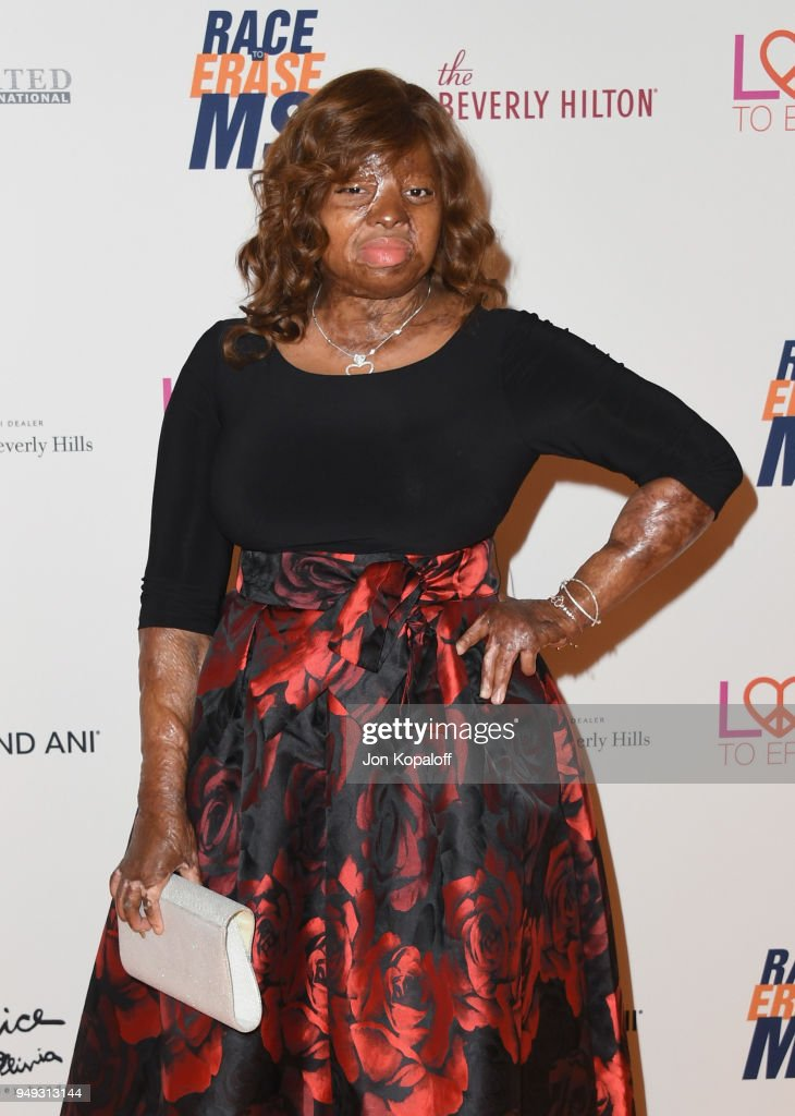 25th Annual Race To Erase MS Gala - Arrivals : News Photo