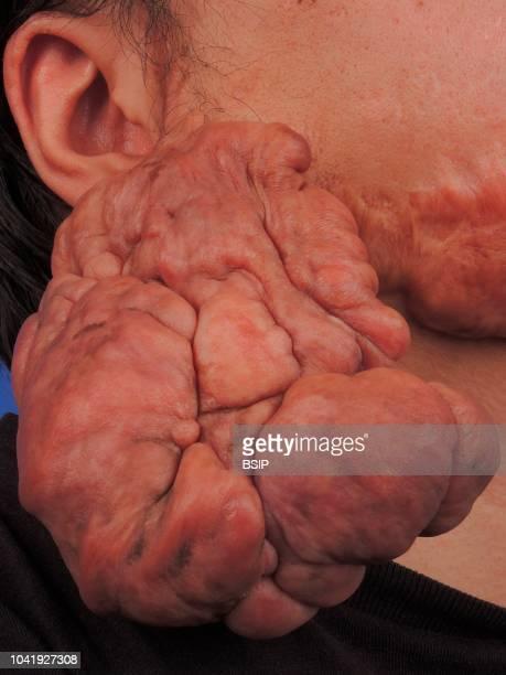 Keloid of the ear.
