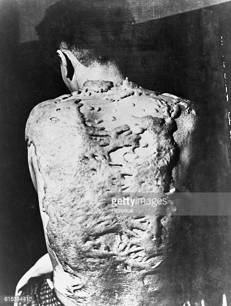 Keloids cover the back of a survivor of the Nagasaki atomic bomb. Keloids are dense, fibrous growths that grow over scar tissue.