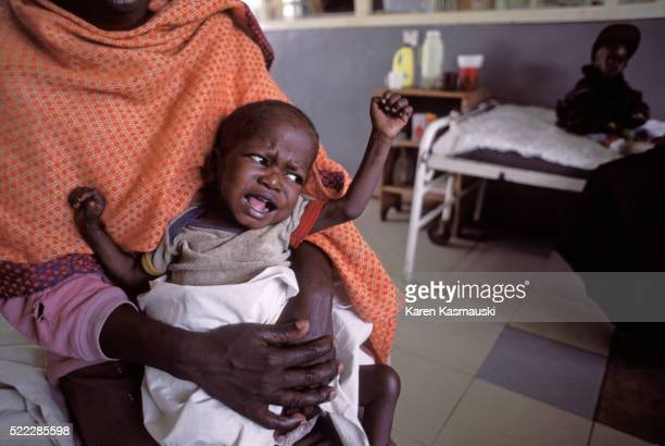 Kenyan babies with malaria receiving quinine