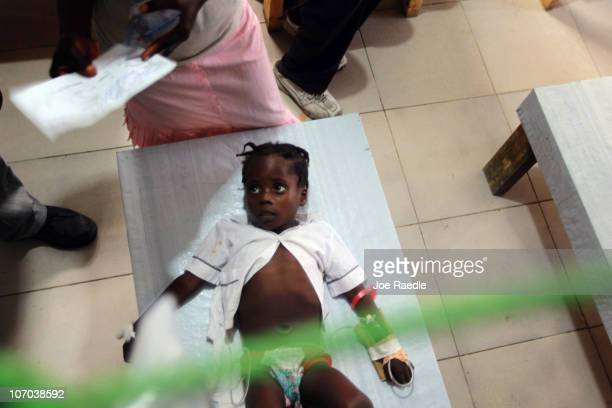 Kerbi Louissaint lies on a cot with an intravenous solution running into her arm as she is treated for cholera in a Doctors Without Borders cholera...