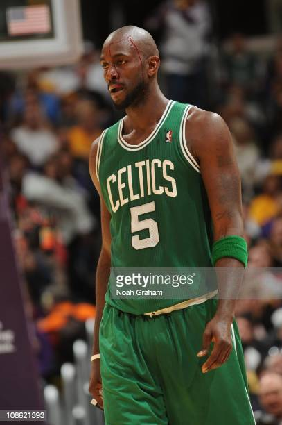 Kevin Garnett of the Boston Celtics drips blood from a would on his head during a game against the Los Angeles Lakers at Staples Center on January 30...