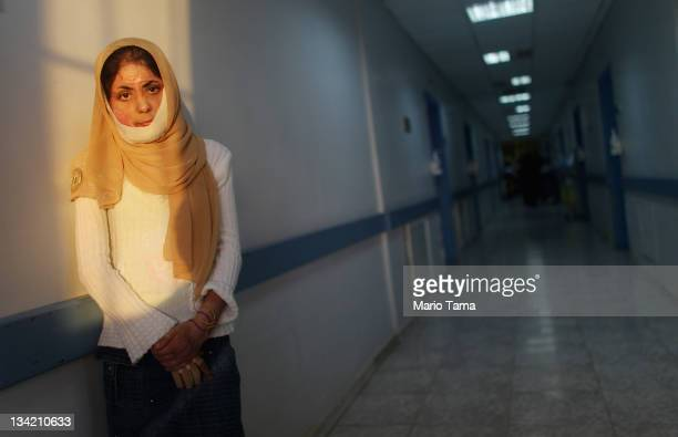Khitam Hamad whose face and body was burned after a car bomb exploded in the Iraqi city of Fallujah poses in a hallway at a program operated by...