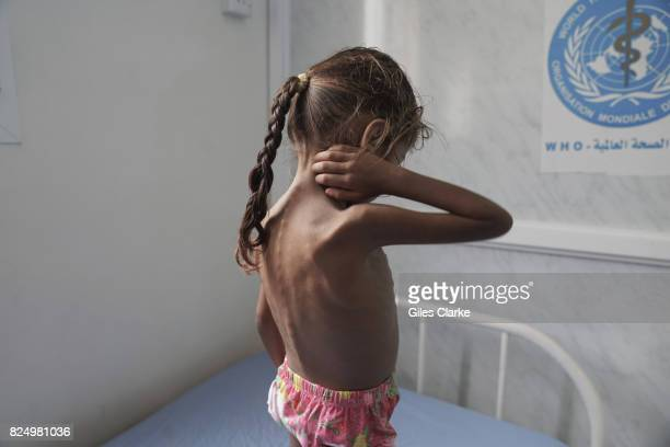 Kholod aged 3 stands on a hospital bed shortly after having been admitted to the pediatric ward for treatment She suffers from severe acute...
