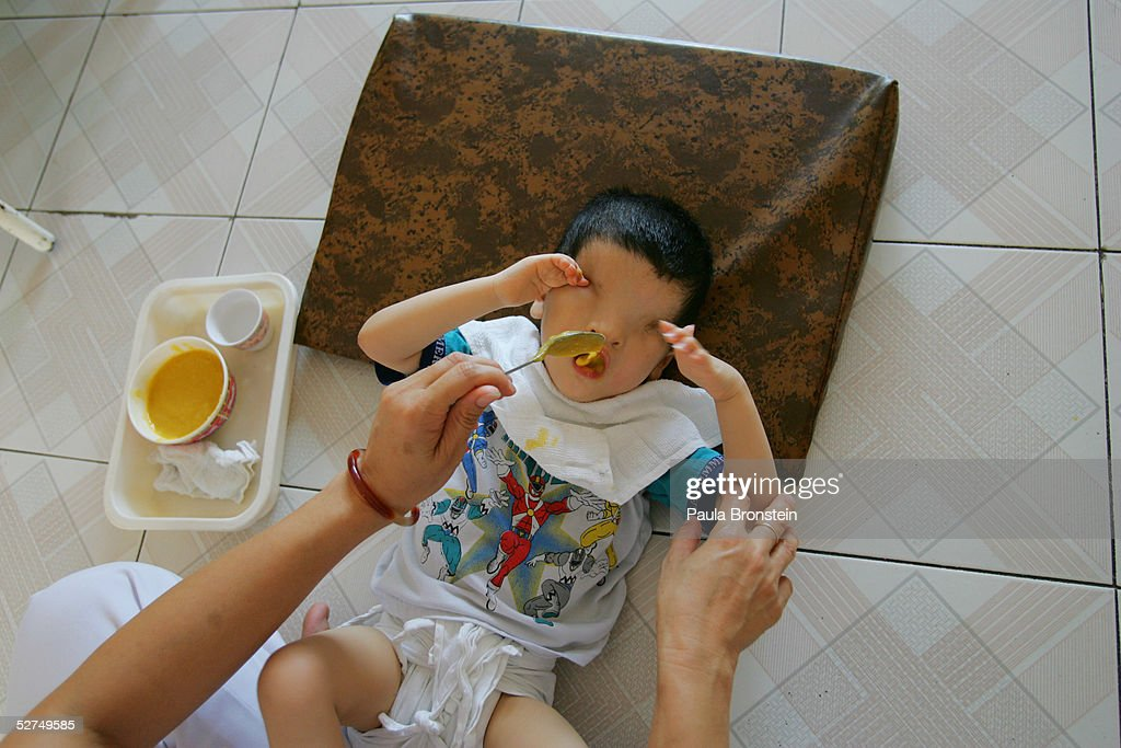 Khung Thoung Sinh, age 3, is fed by a nurse at the Tu Du Hospital May 2, 2005 in Ho Chi Minh City, Vietnam. He has been deformed since birth from what may be the effects of the defoliant Agent Orange used in the Vietnam War. On March 10 a U.S. Federal Court in Brooklyn, New York dismissed a law suit on behalf of millions of Vietnamese against the U.S. for its use of the toxic defoliant during the Vietnam War, which contains dioxin. In 1984, seven American chemical companies paid $180 million to settle a suit by U.S veterans affected the by Agent Orange. Vietnam pledges to pursue the lawsuit and is taking the case to a US Court of Appeals in June.
