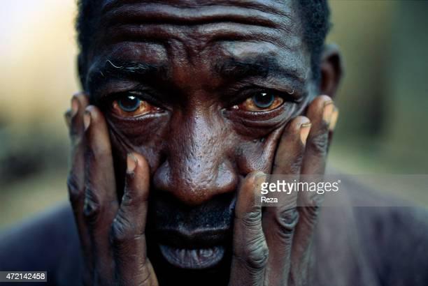 Kibuye Rwanda Portrait of an Hutu refugee traumatized by the 1994 Rwandan Genocide