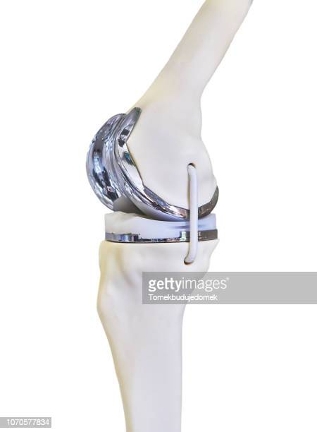 knee - knee replacement surgery stock pictures, royalty-free photos & images