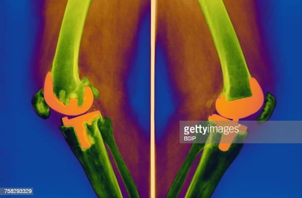 Knee prosthesis,x-ray
