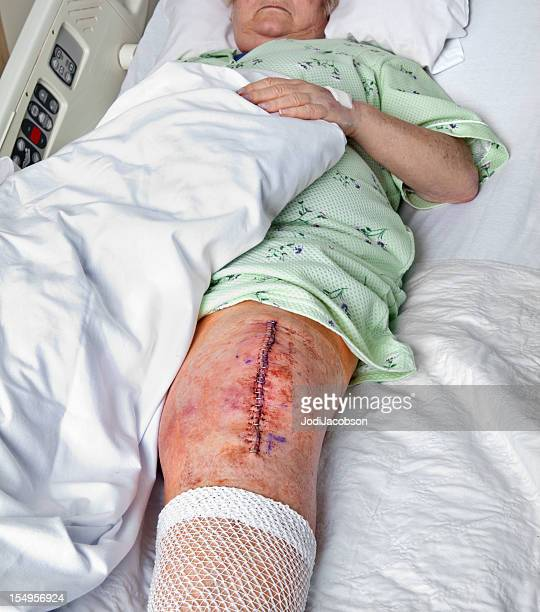 knee replacement incision - surgery stitches stock photos and pictures