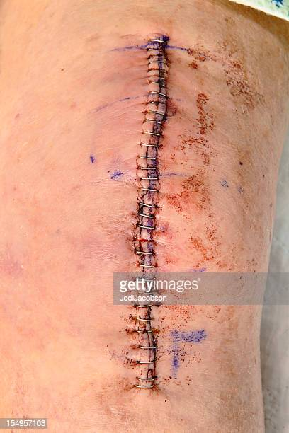 knee replacement incision - leg wound stock pictures, royalty-free photos & images