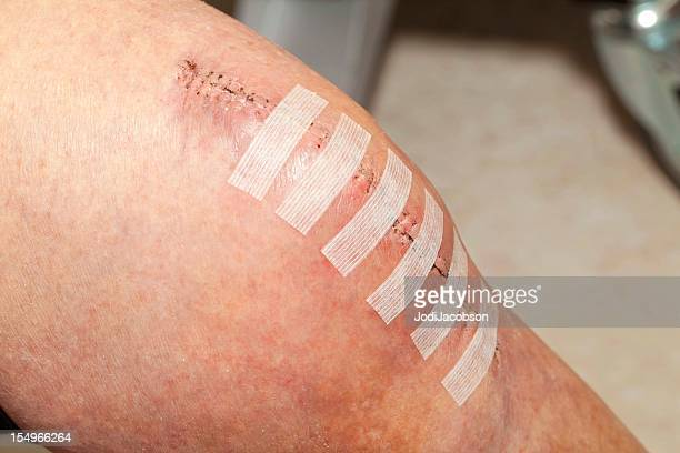 knee replacement incision - medical stitches stock photos and pictures