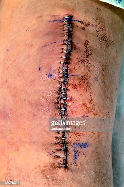 knee replacement incision - skin scab stock photos and pictures