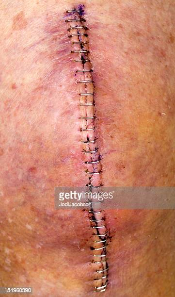 knee replacement incision series - bruise stock photos and pictures