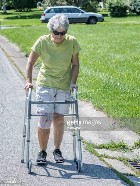 knee replacement surgery medical patient physical therapy - knee replacement surgery stock pictures, royalty-free photos & images