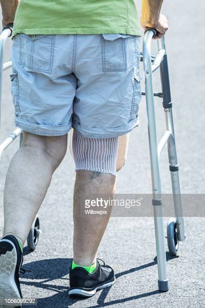knee replacement surgery medical patient walking - knee replacement surgery stock pictures, royalty-free photos & images