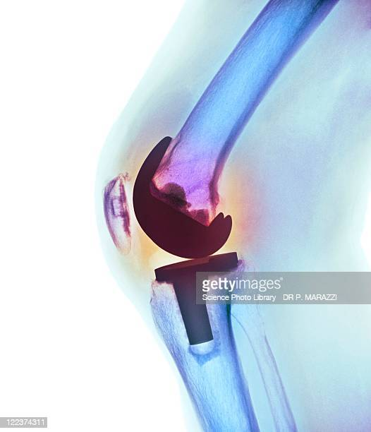 knee replacement, x-ray - implant stock photos and pictures