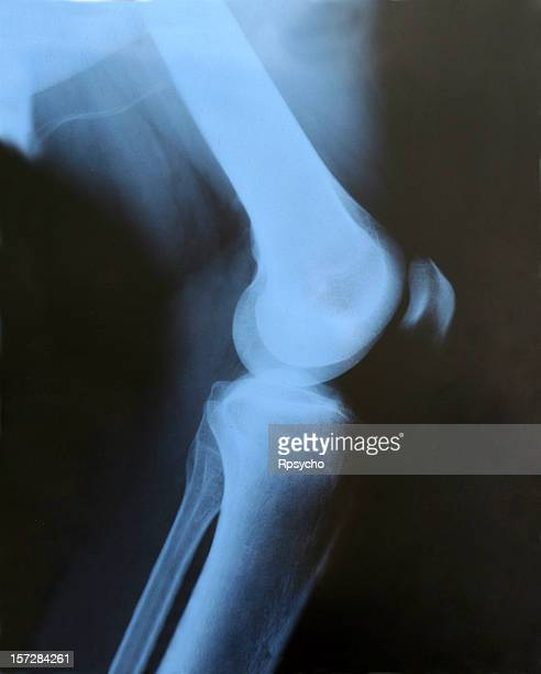 knee x-ray - human knee stock pictures, royalty-free photos & images