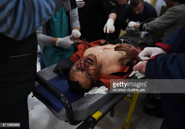 Kurdish man wounded following a Turkish airstrike on a village in the Afrin district receives treatment on January 28 in the Afrin hospital Turkey...