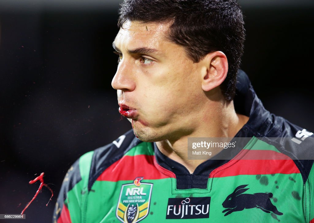 Kyle Turner of the Rabbitohs spits blood during the round 11 NRL match between the South Sydney Rabbitohs and the Melbourne Storm at nib Stadium on May 21, 2017 in Perth, Australia.