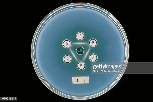 A lab study involving agar gel reactions of Actinomyces sp strains X407 and X573 with homologous antibodies A and B 1964 Actinomyces sp normally...