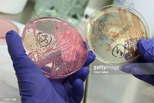 A lab technician holds a bacteria culture that shows a positive infection of enterohemorrhagic E coli also known as the EHEC bacteria from a patient...