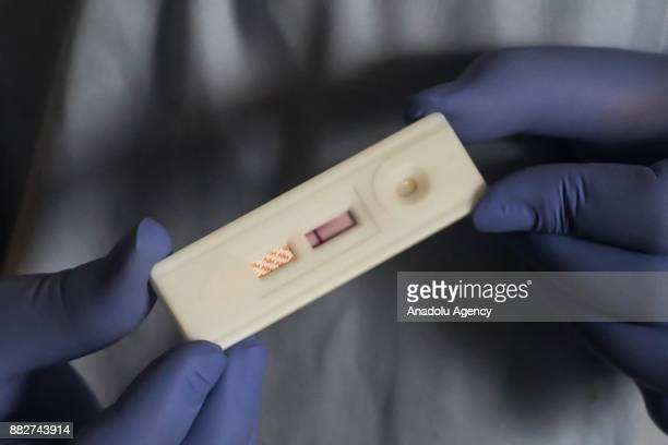 A lab technician shows an HIV test pact with a negative result at the community health center Senen in Jakarta Indonesia on November 30 2017 Data...