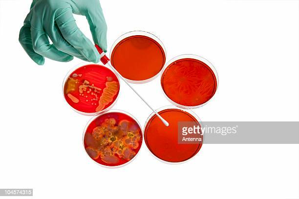A lab technician using a cotton swab on a Petri dish with a bacteria culture, close-up of hand
