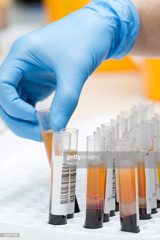 A lab technician with donation tests : Stock Photo