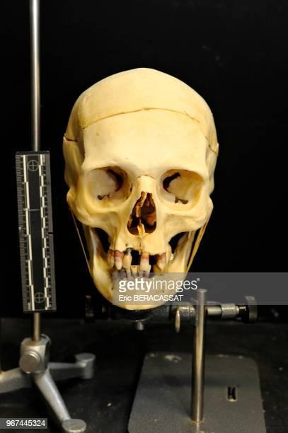Laboratoire d'anthropologie crâne et ossements humain en cours d'identification à l'Institut de Recherche Criminelle de la Gendarmerie Nationale...