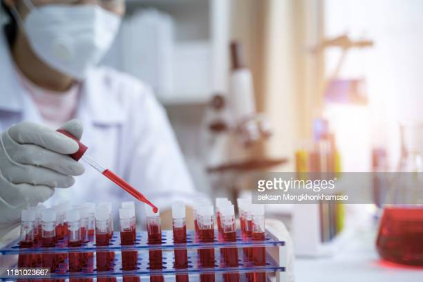 laboratory assistant analyzing a blood sample - 医療とヘルスケア ストックフォトと画像