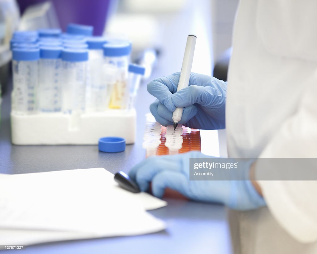Laboratory technician marking lab samples : Stock Photo