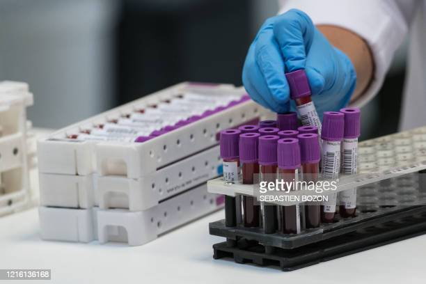 Laboratory technician organises blood samples before carrying out a COVID-19 screening test at the LPA medical analysis laboratory in Besancon,...