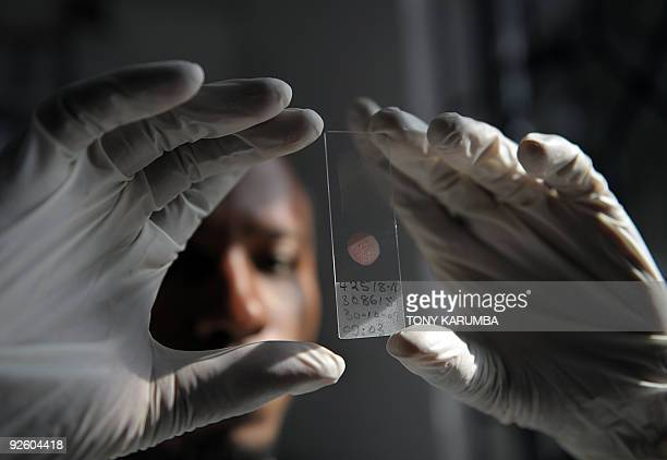 A laboratory technician prepares on October 30 2009 a sample from a volunteer for genotyping at the governmentrun Ifakara Health Institute in...