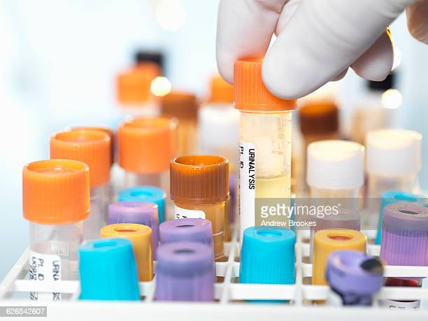 laboratory technician preparing urine sample for medical testing in laboratory - urine sample stock photos and pictures