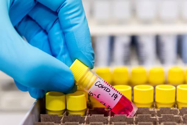 BEL: Virology Lab Work As Europe On Coronavirus High Alert
