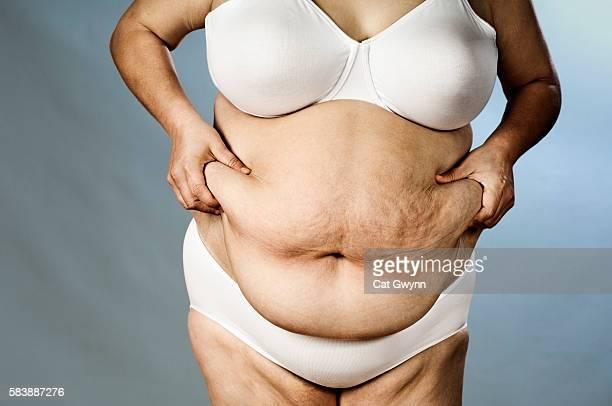 lady holding belly - celulitis fotografías e imágenes de stock