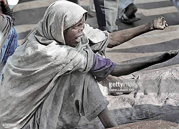 CONTENT] A lady with advanced leprosy sits and yells for money on the steps of the JAMA the largest mosque in INDIA Old Delhi INDIA