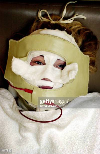 Lara Shriftman receives Galvanic currents behind a mask in the final step of a facial treatment at the Face Place March 13 2000 in Hollywood CA It is...