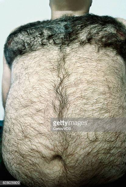 Large Hairy Stomach