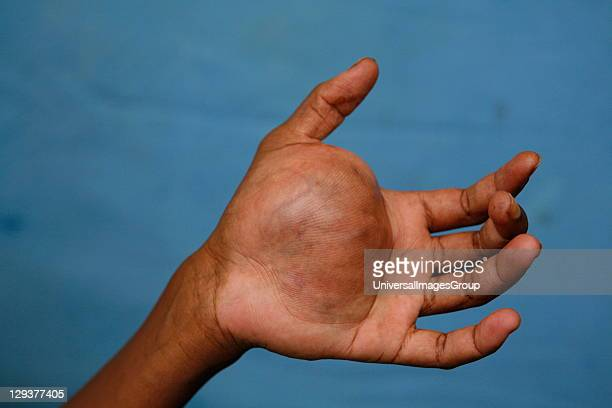 Large neurofibroma growing on woman's hand
