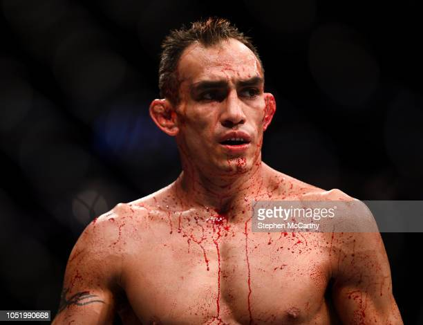 Las Vegas United States 6 October 2018 Tony Ferguson during his UFC lightweight fight against Anthony Pettis during UFC 229 at TMobile Arena in Las...