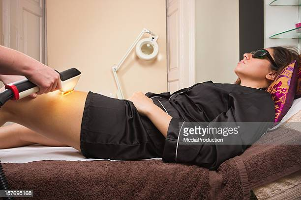 laser hair removal - medical laser stock photos and pictures