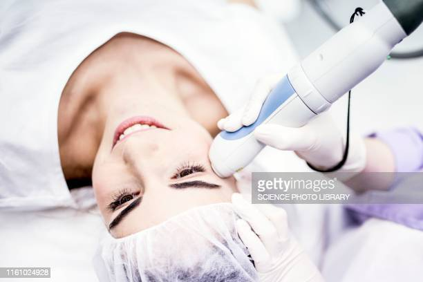 laser peeling treatment - medical procedure stock pictures, royalty-free photos & images