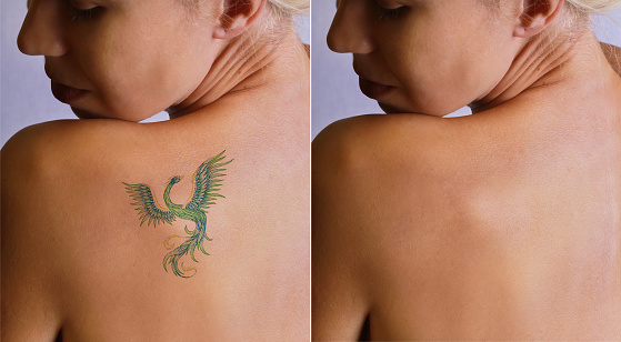 Laser tattoo removal befor and after. 514411126