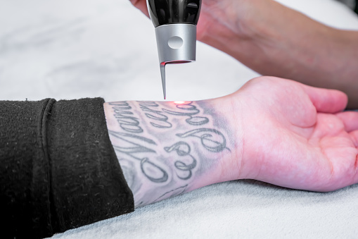 Laser tattoo removal of a large tattoo on a patient's arm, using picosecond laser technology, in a beauty and medical laser clinic. Technician is holding the hand piece. 1173734106
