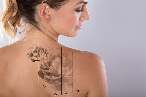 Laser Tattoo Removal On Woman's Shoulder 917893110