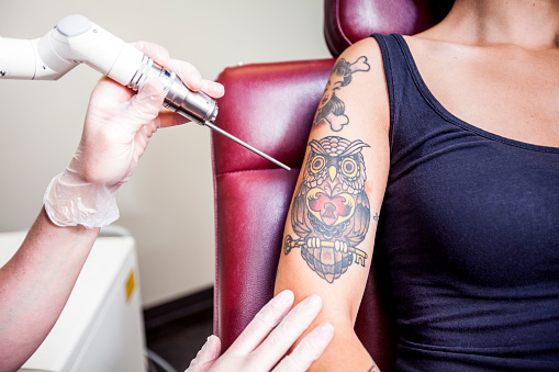 Laser Tattoo Removal 544483204