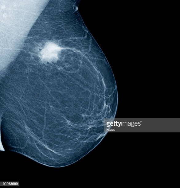 lateral mammogram of female breast with tumor - mammogram stock pictures, royalty-free photos & images